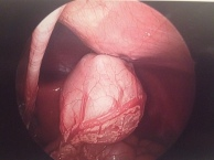 stomach gastric tube